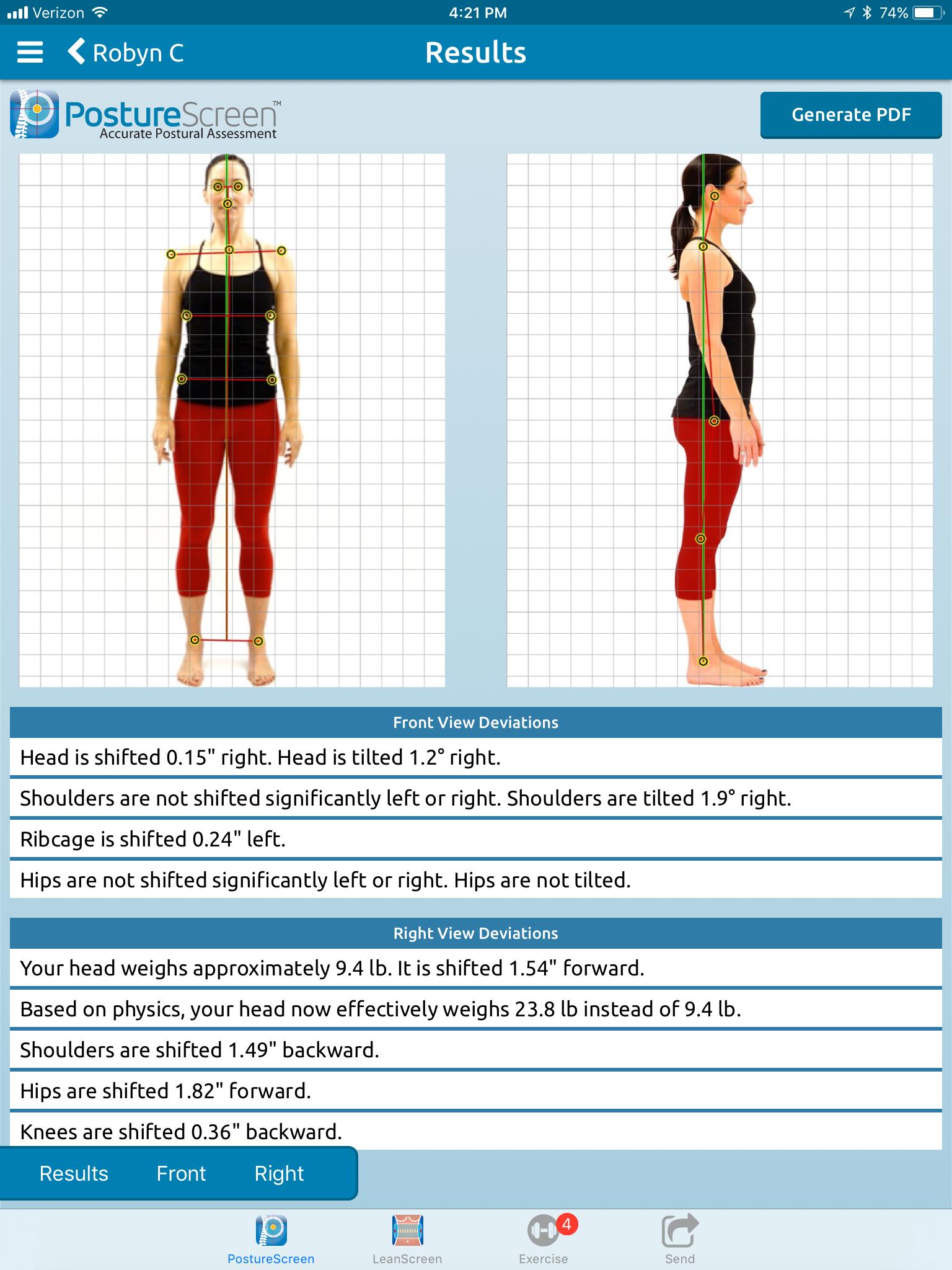 PostureScreen Posture Analysis Assessment Evaluation App ...